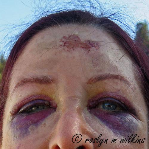 roslyn swollen face